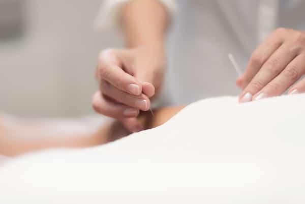 acupunctuur pijnlijk