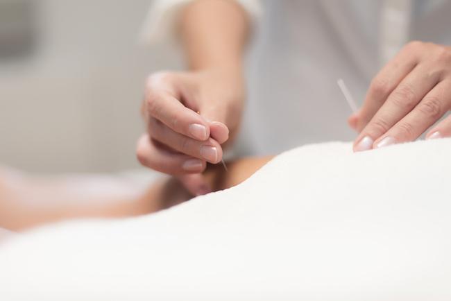 praktijk acupunctuur open